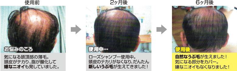 育毛効果,キャピキシル使用前使用後